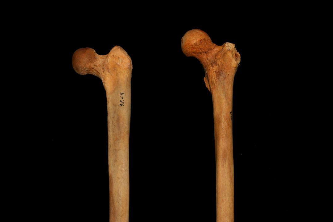 anatomía de fémur afecta flexibilidad