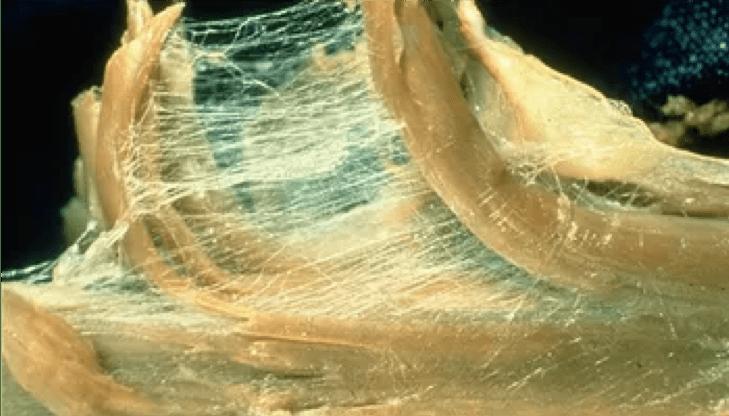fascia músculo
